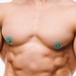 лазерная эпиляция мужчин - ареолы молочных желез