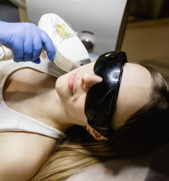 лазерная эпиляция на лице