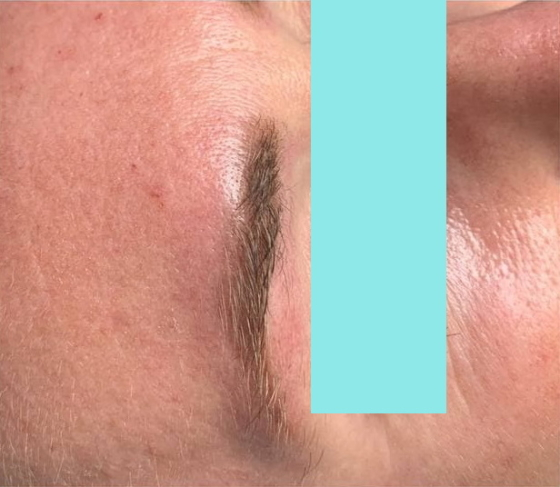 После удаления перманентного макияжа